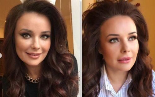 Oksana Fedorova before and after plastic surgery